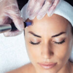 Microneedling Special with Dr. Mikulics